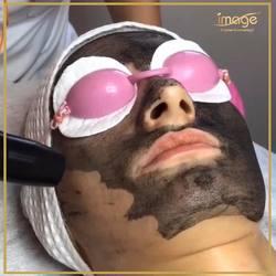 """Nasi specjaliści zaopiekują się Twoją skórą.💟 Znajdą najszybsze sposoby, by pomóc jej odzyskać piękną skórę.🥰 🔻 Dziś polecamy⬇️ Laserowy piling węglowy """"Black Doll"""" to👇 ✅ oczyszczenie skóry ✅ zwężenie rozszerzonych porów ✅ zmniejszenie stanów zapalnych ✅ ustabilizowanie wydzielania sebum (zmniejszenie łojotoku ) ✅ ujednolicenie kolorytu skóry ✅ poprawę jędrności skóry ( stymulacja produkcji kolagenu ) ✅ wygładzenie drobnych zmarszczek ✅ rozjaśnienie przebarwień 🔻 Twarz👉200zł Twarz+szyja👉240zł Twarz+szyja+dekolt👉280zł 🔻 Dodatkowy prezent dla Ciebie: BON O WARTOŚCI 5️⃣0️⃣zł na drugi zabieg.😁 🔻 Umów się na wizytę👇 ☎️ 662497510 Miłego dnia Kochani.☺️"""