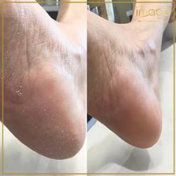 Nasz nowy zabieg PEDICURE KWASOWY 👣 #calluspeeling 👣🔝👣🔝👣 Doskonale radzi sobie z twardą, mocno zrogowaciałą skórą na stopach 💪🥇💪 ❤️ Zapraszamy ☎️ 662497510