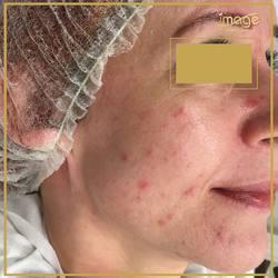Zdjęcia przed i po😀 bez filtrów. (Przesuń w prawo😉) Chcemy pokazać Wam efekty w trakcie kuracji, byście mogli zobaczyć różnicę. ⬇️ Cel👉wyrównanie kolorytu i usunięcie zmian skórnych. Kontynuujemy serię.✅😍🧐 ⬇️ Zmieniliśmy kosmetyki, zastosowaliśmy odpowiednie zabiegi i zbliżamy się do celu.💪 🔽 Zapraszamy ☎️ 662497510