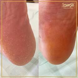 Piękne, gładkie stopy bez użycia omegi, czy skalpela ? Tak ‼️ to jest możliwe tylko w naszym Instytucie 👌👣🔝, dzięki profesjonalnemu zabiegowi medycznego, kwasowego pedicure👣  👉PEDICURE INNY NIŻ WSZYSTKIE 🔝👣🏆 ✅ całkowicie usuwa twardy, suchy, zrogowaciały naskórek na stopach ✅ specjalistyczne płaty nasączone buforowanym roztworem kwasu pozwalają na bezbolesne i niezwykle bezpieczne usunięcie zrogowaciałego naskórka bez podrażnień i łuszczenia 💢 ✅ bezpieczny w przypadku stopy cukrzycowej oraz po chemioterapii 👌 ✅ preparat medyczny z certyfikacją #Sweessmedics 🇨🇭 Efekty rewelacyjne już po pierwszym zabiegu👌🔝🥇 Sami zobaczcie 👇👇👇 ❤️ Zapraszamy do zapisów ☎️ 662497510